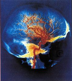 arteries of the brain | Flickr - Photo Sharing!