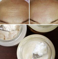Get Rid of Wrinkles In 7 Days Naturally