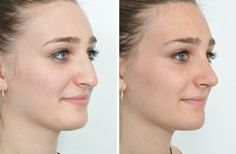 Rhinoplasty is a surgery to change the nose shape by adjusting the bone or ligament. Rhinoplasty is a commonly and widely recognized sort of plastic surgery.