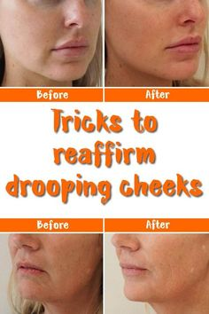 Tricks to reaffirm drooping cheeks. Face Yoga really works. Start doing facial exercises today and you'll be very happy with the results. Natural Hair Mask, Natural Hair Styles, Natural Beauty, Natural Skin, Pure Beauty, Natural Makeup, Beauty Care, Beauty Hacks, Beauty Skin