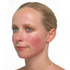 Acne rosacea natural treatment rosacea symptoms in toddlers,best anti aging face moisturizer best proven anti aging products,skin product lines rosacea face treatment. Ocular Rosacea, Acne Rosacea, Red Pimples, Home Remedies For Rosacea, Acne Remedies, Natural Remedies, Homeopathic Remedies, Ideas, Beauty Tips