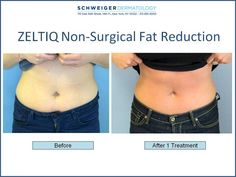 Coolscuplting by Zeltiq Non-Surgical Fat Reduction