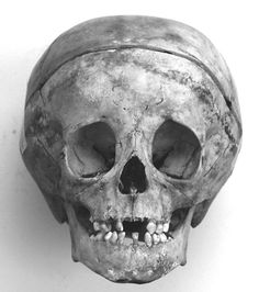 Skull of Don Filippino de Medici (1577-1582) He had a mild form of hydrocephalus. He was the son of Francesco I de Medici and Joan of Austria.