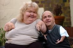 Can-do attitude: Thalidomide survivors Darren Mansell and Louise Medus