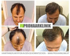 Haartransplantation Abs, Trends, Pictures, Losing Hair, Crunches, Abdominal Muscles, Killer Abs, Six Pack Abs, Beauty Trends
