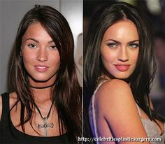Young but already well held actress Megan Fox at the beginning of his career was the most that either there is an ordinary girl. Talented and cute, of course, but before the appearance of Hollywood beauties recognized clearly does not hold.That is why the struggle for their starring Fox opted for plastic surgery - and, as time showed, made the right decision. Barely reaching the 'local' age (21 years), Megan had a series of substantive correction of his face and body, which resulted in her act Celebrity Plastic Surgery, Celebrities Then And Now, Ordinary Girls, Real People, Face And Body, Beautiful People, Hollywood, Celebs, Celebrity