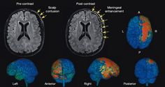 What a concussion looks like inside your brain | But what happens to the brain right after a concussion? Researchers at the National Institute of Health peered into the brains of mice and watched how a traumatic brain injury progresses over a day. Their findings, published in the journal Nature this week, showed that a single concussion can cause cell death in the brain in a matter of hours.