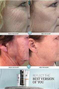 Bring out your #confidence with a #younger looking you! You'll feel like a whole new person with these #results! #Nerium Night & Day Creams will combat many of your #antiaging concerns at the same time! No complex systems here- #simplicity! 30-day money back #guarantee, so you can feel confident about your purchase. #skincare #antiagingproducts #FollowLauraLives