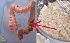 Il antico medico greco antico ha detto che 'la morte comincia nel colon'. Oggi la scienza moderna ha dimostrato che aveva ragione. Più di 50 milioni di ...