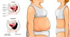Diga adiós a la grasa del vientre con estos consejos, ¡no os lo perdáis!