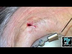 Pocket full of Pebbles cyst. One of a kind pebble pop! You've never seen a pebble cyst pop before. - YouTube Pimple Popping, Pimples, Eyebrows, Medical, Pocket, Youtube, Eye Brows, Medicine, Brows
