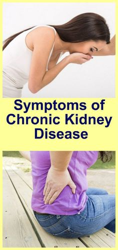 Symptoms Of Chronic Kidney Disease - Page 5 of 5 - Daily Health News Natural Colon Cleanse Detox, Kidney Detox Cleanse, Kidney Health, Health Diet, Health Care, Health 2020, Teeth Health, Health Advice, Kidney Disease Symptoms