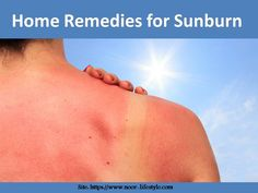 Live skin tissues affected by radiation of sun are known as sunburn. Home Remedies For Sunburn, Health Care, Pregnancy, Healing, Health, Sunburn Home Remedies, Pregnancy Planning Resources, Conceiving