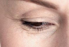 Eliminar las arrugas bajos los ojos, puede parecer tarea difícil, sin embargo, usando alimentos como aguacate, pepino, huevo, se podrán disminuir o ...