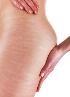 There are several factors why stretch marks develop. The most common is due to pregnancy. Secondly, losing weight affects fat obviously, and the elasticity of the skin starts to change as a result. Stretch Marks On Thighs, Prevent Stretch Marks, Stretch Mark Cream, Stretch Mark Treatment, Stretch Mark Removal, Castor Oil For Skin, Sante Bio, Stretch Marks During Pregnancy, Snoring Remedies