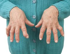 Rheumatoid arthritis is an autoimmune disorder that can affect the joints and organs in the body, which usually presents with a flare up of symptoms followed by a period of remission.
