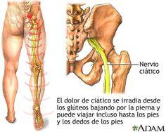 """EL DOLOR DE CIATICO: También conocido como 'El síndrome del piramidal' es una de las causas más frecuentes. La ciática NO es el problema en sí mismo, es tan solo un síntoma. La definición de ciática es: """"dolor, debilidad, entumecimiento u hormigueo en la pierna, causados por lesión o compresión del nervio ciático"""" y una de las posibles causas de aparición de éstos síntomas es la compresión del nervio por acción (patológica) del músculo Piramidal."""