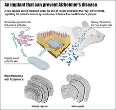An implant to prevent Alzheimer's http://www.sciencetotal.com/news/2016-03-an-implant-to-prevent-alzheimers/
