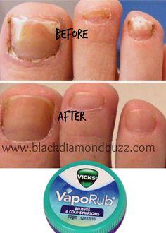 13 Myths Uncovered About Vicks Vaporub Uses.  #toenailfungus #fungus #bacteria #vicks #vicksvaporub #ointment #cream #holistic #homeremedies http://www.blackdiamondbuzz.com/vicks-vaporub-uses-in-13-easy-ways