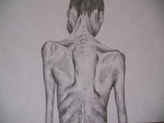 Anorexic Art