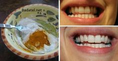 This Turmeric Anti-Inflammatory Paste Will Reverse Gum Disease, Swelling, And Kill Bacteria - Time For Natural Health Care Gum Health, Oral Health, Dental Health, Teeth Health, Dental Care, Turmeric Anti Inflammatory, Liver Detoxification, Organic Turmeric, Healthy Teeth