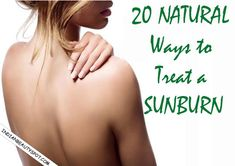 20 Best Sunburn Home Remedies – Instant Relief from Sunburn