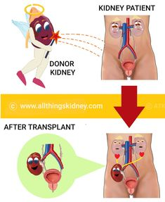 #Kidney #transplant is the best #treatment option for #kidneyfailure due to #chronic #kidneydisease. Learn why this is so, how it is better than staying on #dialysis for life unless indicated for #medical reasons and learn the bare basics in detail, here. Brain Nerves, Blood Components, Human Kidney, Kidney Donor, Organ Donation, Chronic Kidney Disease, Kidney Failure, Dialysis