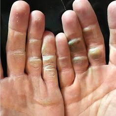 Alex Noren Hands after golf Practice