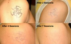 Tattoo Removal Before And After Pictures and Article #InkDoneRight #IdR #Tattoo #Tattoos #TattooRemoval #Inked #Ink #InkRemoval