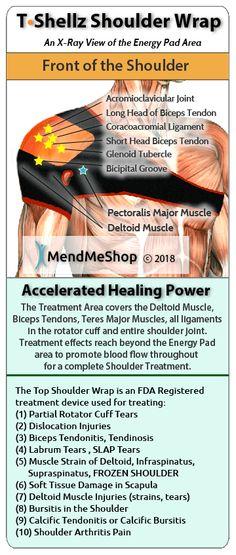 Shoulder TShellz Wrap for Rotator Cuff Tendinitis Shoulder Impingement Syndrome, Bursitis Shoulder, Rotator Cuff Strain, Rotator Cuff Tear, Shoulder Surgery, Shoulder Joint, Shoulder Rehab, Sore Shoulder, Bicep Tendonitis