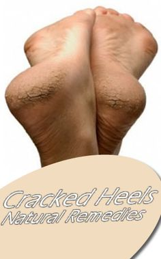 Cracked Feet and Heels – Natural Remedies #health #skincare #natural_remedies