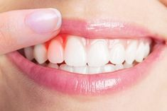 To prevent the development of gum disease practice good oral hygiene as Daily brushing and flossing remove plaque and bacteria. Signs of gum disease include: Bad breath. Gum Disease Treatment, Teeth Implants, Dental Implants, Dental Bridge Cost, Abscess Tooth, Loose Tooth, Tooth Sensitivity, Stretch Routine, Beauty Tutorials