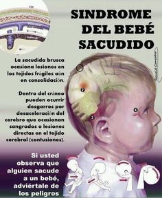 SACUDIR AL BEBE PUEDE SER FATAL...!!! Saludos amigos... Algunos padres lo hacen de buena fe, seguros de que el bebé disfruta el zarandeo. Otros, con la intención de contentarlo para que deje de llorar. En cualquier caso, pocos saben que es una práctica peligrosa, catalogada inclusive como una forma de maltrato infantil. La sacudida brusca ocasiona lesiones en los tejidos frágiles y aún en consolidación. Dentro del cráneo pueden ocurrir desgarros por desaceleración del cerebro que ocasionan…
