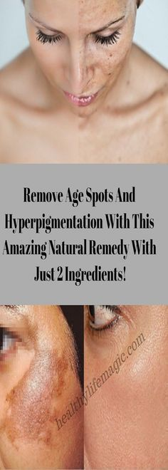 Remove Age Spots And Hyperpigmentation With This Amazing Natural Remedy With Just 2 Ingredients! | Healthy Life Magic