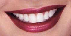 Tu sonrisa mas blanca con TotDental