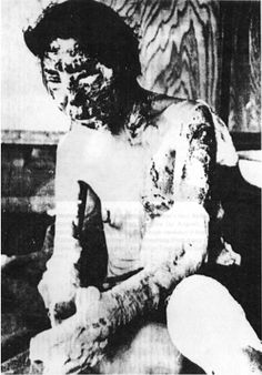Hiroshima and Nagasaki Victims Death Pictures Hiroshima Bombing, Nagasaki, Atomic Bomb Hiroshima, Vietnam, Horrible Histories, Nuclear War, Women In History, War Machine, History