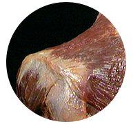 Acland's Video Atlas of Human Anatomy Human Anatomy, Studio, Artists, Study, Body Anatomy