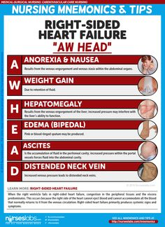 Cardiovascular Care Nursing Mnemonics and Tips - Nurseslabs