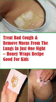 Honey Wraps – Cures Strong Cough and Removes Mucus from The Children's Lungs In Just One Night! Honey Wraps – Cures Strong Cough And Removes Mucus From The Lungs In Just One Night! Especially Efficient For Children Health Tips For Women, Health And Beauty Tips, Health Advice, Health And Wellness, Health Care, Health Fitness, Health Diet, Baby Health, Heart Health