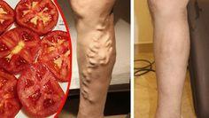 Las varices son un problema ocasionado por trastornos circulatorios, este puede verse reflejado tanto en hombres como en mujeres, aunque estas últimas. Son las que más se centran en este problema, ay que afecta mucho a la manera de ver la piel femenina. Para las mujeres es muy importante tener unas piernas bonitas, sin ningún …