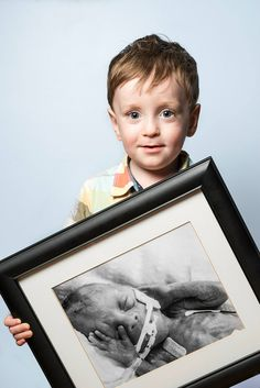 Inspiring Before-and-After Portraits of People Who Were Born Prematurely - My Modern Met