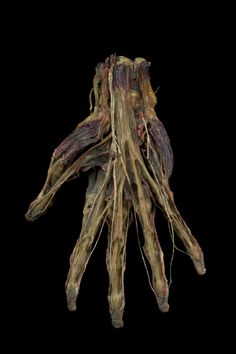 Wax injected human left hand, Europe, 1831-1870  Wax has been injected into the arteries, veins and muscles to preserve the internal structure of the hand. This technique was perfected by Frederik Ruysch (1638-1731), a Dutch anatomist. The wax injection highlights the blood vessels that otherwise would be difficult to distinguish. Anatomical preparations such as this one were useful in an age when there was a lack of bodies available for dissecting. This arm may have been used as a teaching…