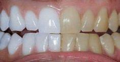 Υγεία - Ένα από τα πιο αντιαισθητικά πράγματα στον κόσμο είναι τα κίτρινα δόντια. Μπορεί να πιστεύετε ότι πέρα από τακτές επισκέψεις στον οδοντίατρο και πέρα από ε