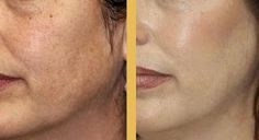 Fresh Skin. Chemical peels will give your face a new start. PCA skin peels are amazing! No burning or down time.