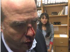Venezuela: golpean a varios diputados con tubos y piedras
