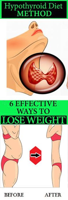 6 Effective Ways to Lose Weight With the 'Hypothyroid Diet Method' . - Effective Ways to Lose Weight With the 'Hypothyroid Diet Method' . Losing Weight With Hypothyroidism, Hypothyroidism Diet, Thyroid Diet, Thyroid Gland, Best Weight Loss Pills, Weight Loss Drinks, Weight Loss Tips, Start Losing Weight, Ways To Lose Weight