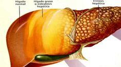 Fígado gordo - Cura pela Natureza