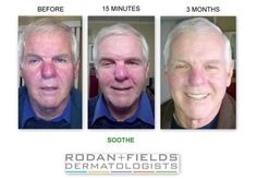 """rodan and fields before and after soothe 