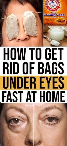 How to get rid of bags under eyes? Using some expensive skin products just help to shrink eye bags for temporary purpose. So, what we have to do to prevent those ugly bags under your eyes? Do we have any alternatives rather than products? Beauty Care, Beauty Skin, Beauty Hacks, Beauty Tips, Beauty Secrets, Beauty Style, Diy Beauty, Homemade Beauty, Beauty Ideas
