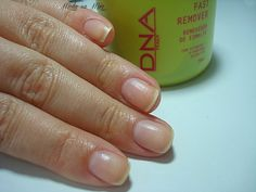 FAST REMOVER - DNA ITALY